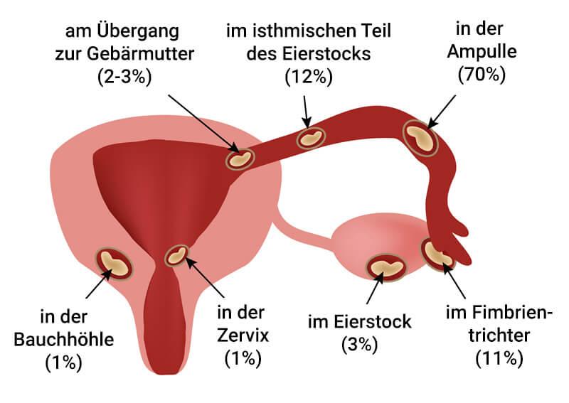 ektopische-schwangerschaften